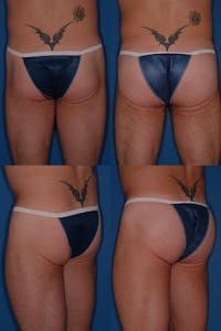 Buttock Augmentation with Implants – Male Gallery - Patient 2395011 - Image 1
