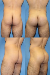 Buttock Augmentation with Implants – Male Gallery - Patient 2395007 - Image 1