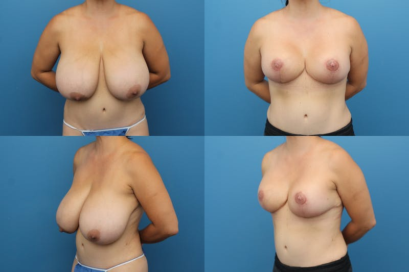 Reductive Augmentation of the Breast Gallery - Patient 2162078 - Image 1