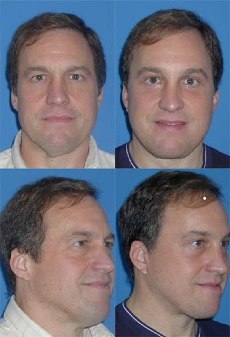 Face Lift Gallery - Patient 3255816 - Image 1