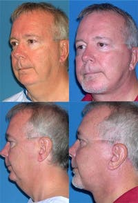 Face Lift Gallery - Patient 3255817 - Image 1