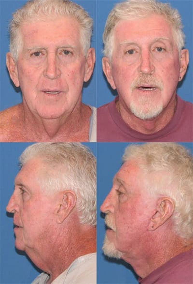 Face Lift Gallery - Patient 3255818 - Image 1