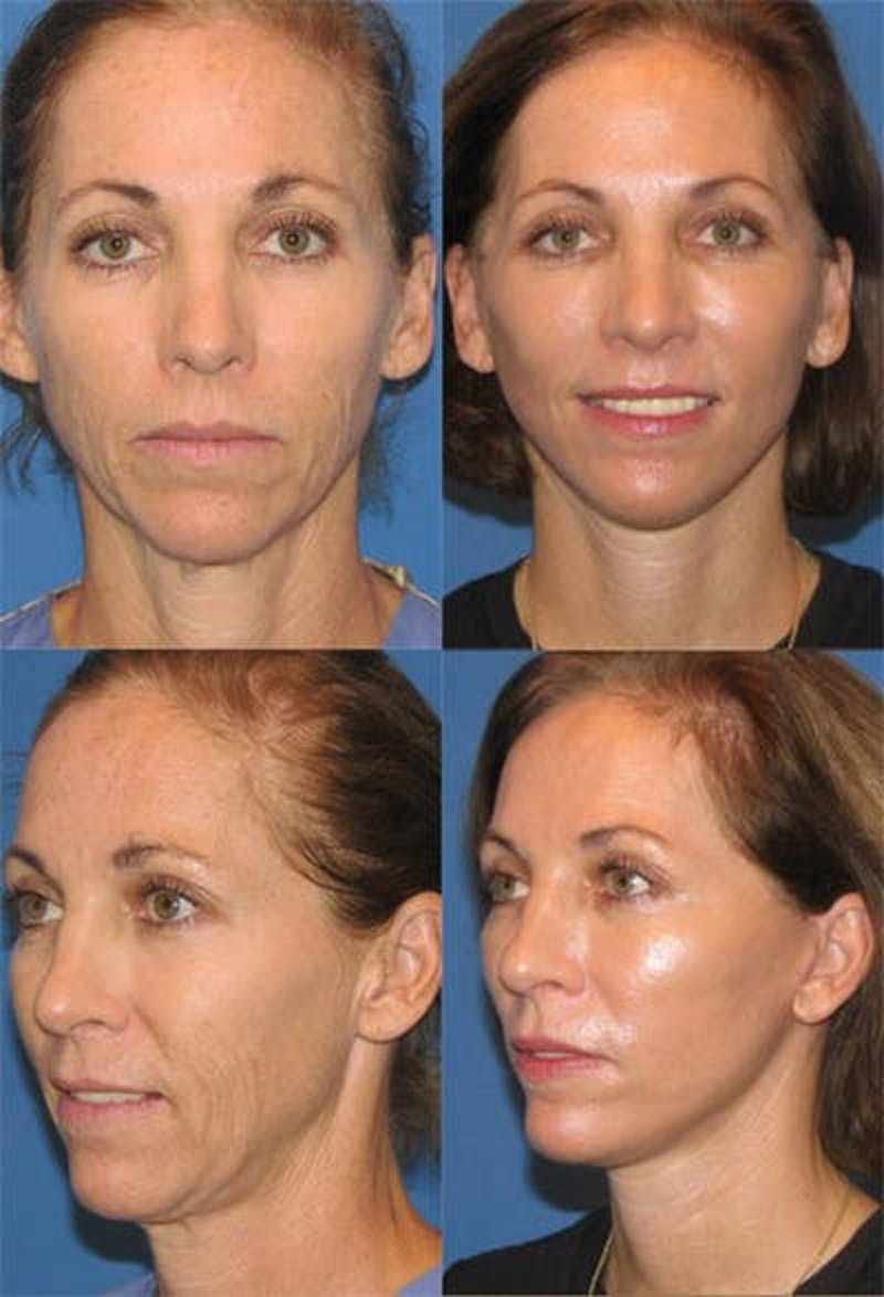 Face Lift Gallery - Patient 3255821 - Image 1