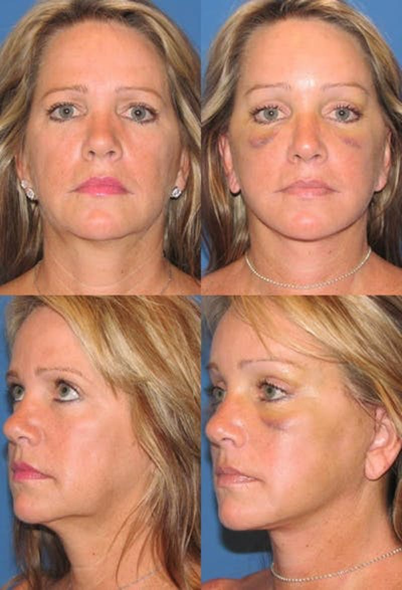 Face Lift Gallery - Patient 3255822 - Image 1