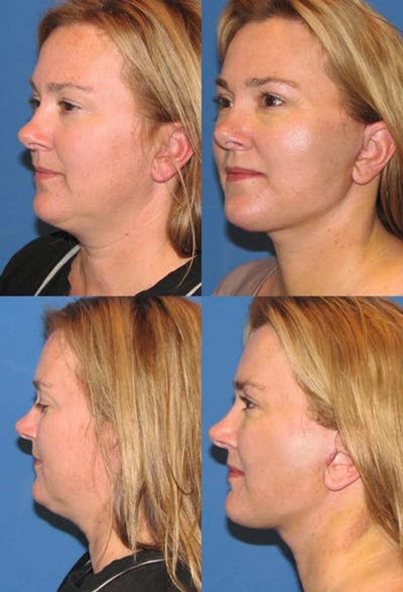 Face Lift Gallery - Patient 3255824 - Image 1