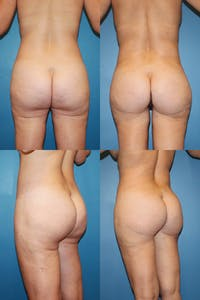 Thong Lift Gallery - Patient 2162087 - Image 1