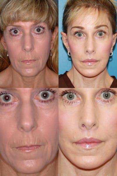 Lip Lift Gallery - Patient 2158566 - Image 1