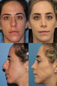 Rhinoplasty Gallery - Patient 3664240 - Image 1