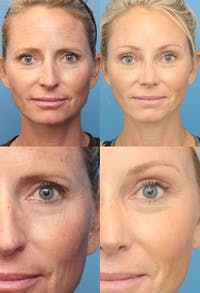 Brow Lift Gallery - Patient 2848098 - Image 1