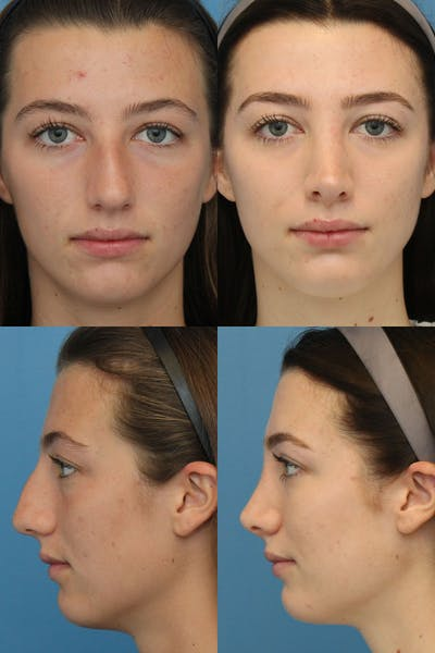 Crooked Nose Gallery - Patient 4586818 - Image 1