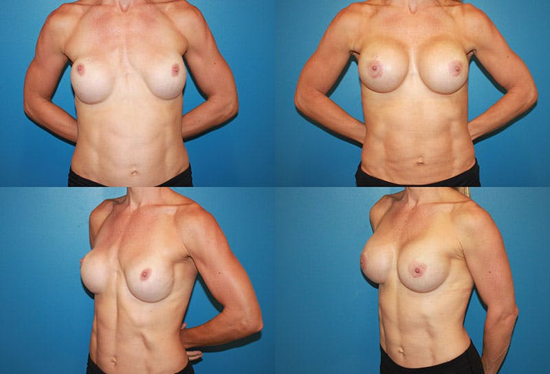 Body Building Figure Fitness Breast Augmentation Gallery - Patient 4622739 - Image 1