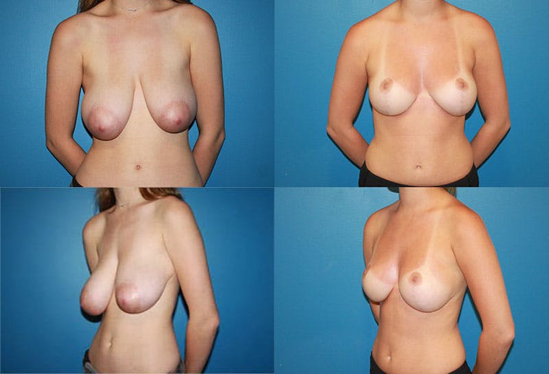 Breast Reduction Gallery - Patient 2161472 - Image 1