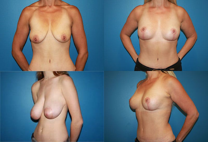 Breast Reduction Gallery - Patient 4876392 - Image 1