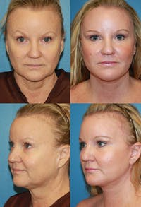 Face Lift Gallery - Patient 4882276 - Image 1