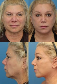 Face Lift Gallery - Patient 4882497 - Image 1
