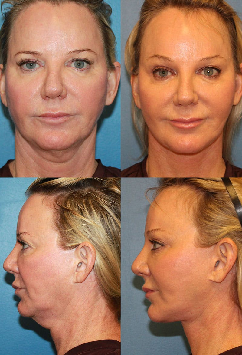 Face Lift Gallery - Patient 4882557 - Image 1