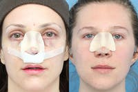 No bruise Rhinoplasty – One day Post-operative Gallery - Patient 5096348 - Image 1