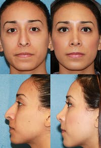 Rhinoplasty Gallery - Patient 2388188 - Image 1