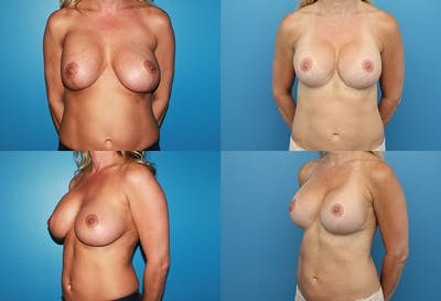 Correction of Long Term Changes Associated with Implants on Top of the Muscle Gallery - Patient 5147443 - Image 1