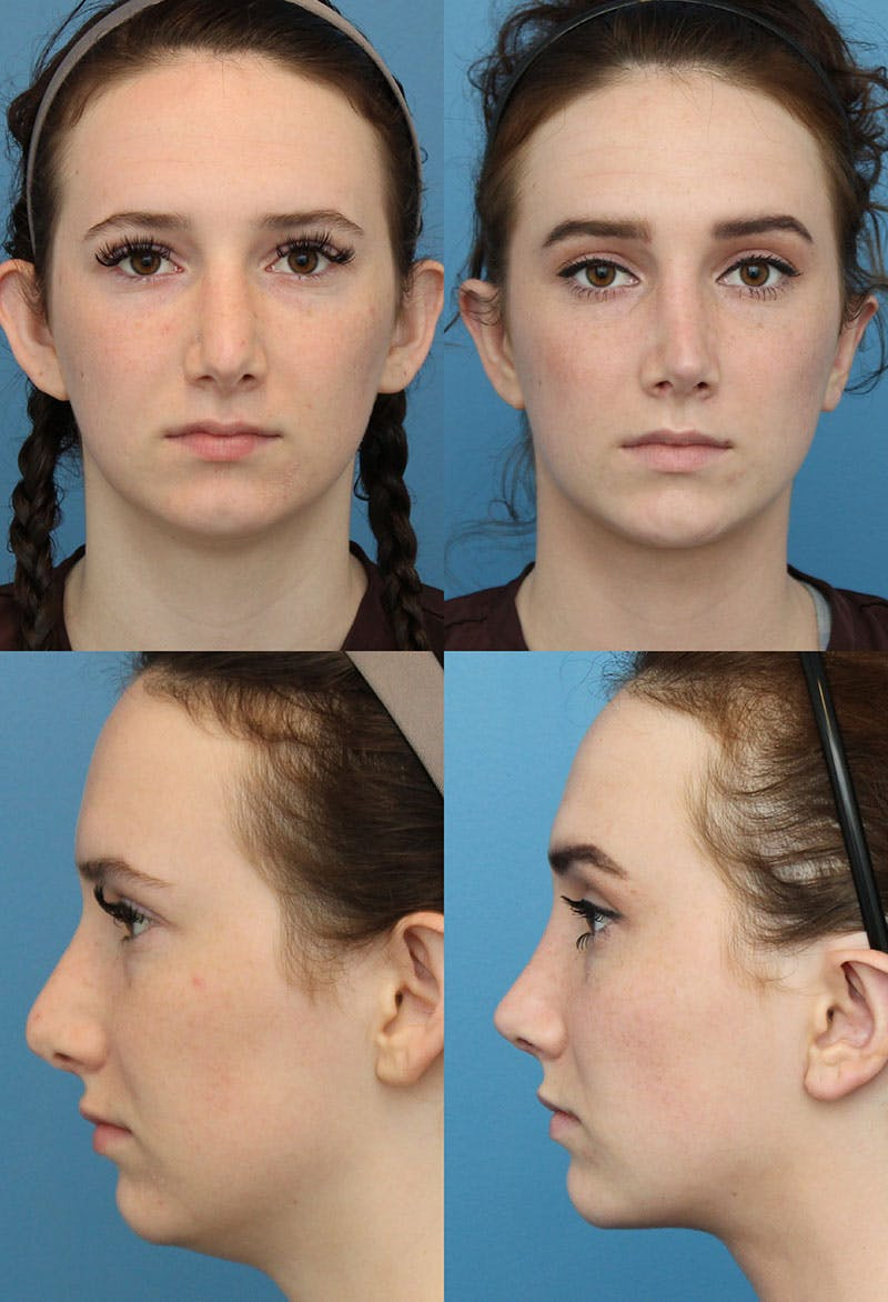 Revision Rhinoplasty Gallery - Patient 5157412 - Image 1