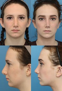 Neck Liposuction Gallery - Patient 5157435 - Image 1