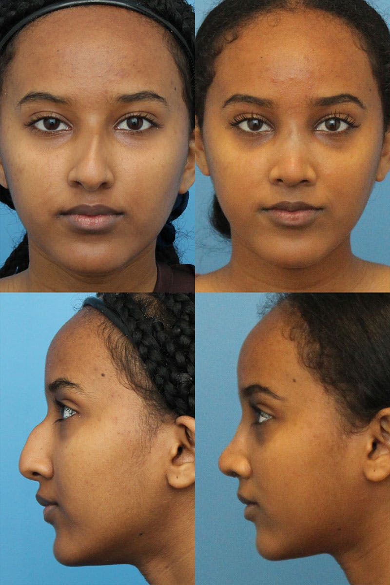 Crooked Nose Gallery - Patient 5468578 - Image 1