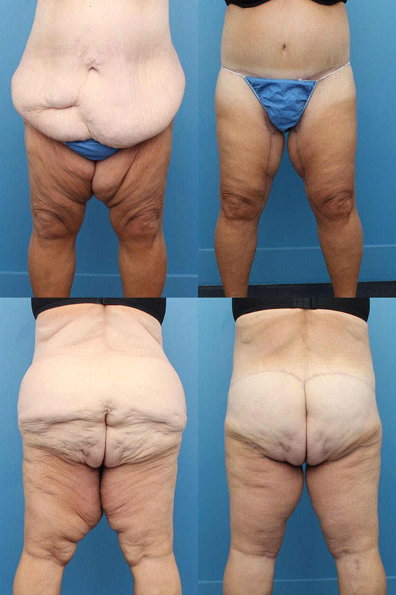 Body Lift / Thigh Lift Gallery - Patient 5468579 - Image 1