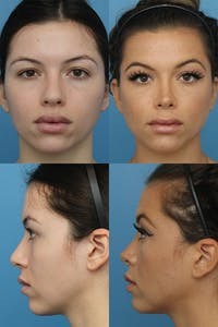 Rhinoplasty Gallery - Patient 5468582 - Image 1