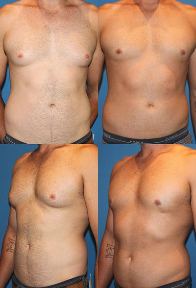 Liposuction Male Gallery - Patient 2394823 - Image 1