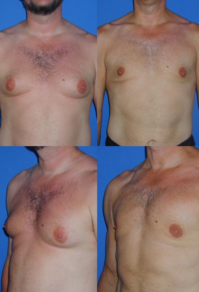Liposuction Male Gallery - Patient 2394824 - Image 1