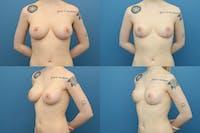 En Bloc Capsulectomy Gallery - Patient 5928223 - Image 1