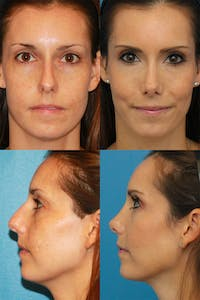 Rhinoplasty Gallery - Patient 2158409 - Image 1