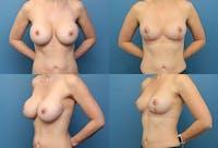 En Bloc Capsulectomy Gallery - Patient 6232587 - Image 1