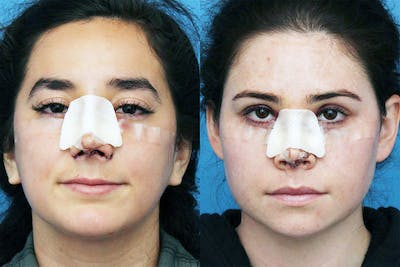 No bruise Rhinoplasty – One day Post-operative Gallery - Patient 5096349 - Image 1