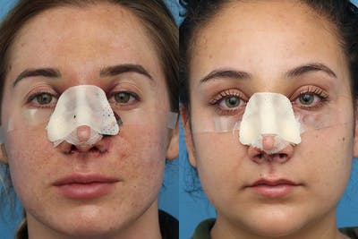 No bruise Rhinoplasty – One day Post-operative Gallery - Patient 6276416 - Image 1