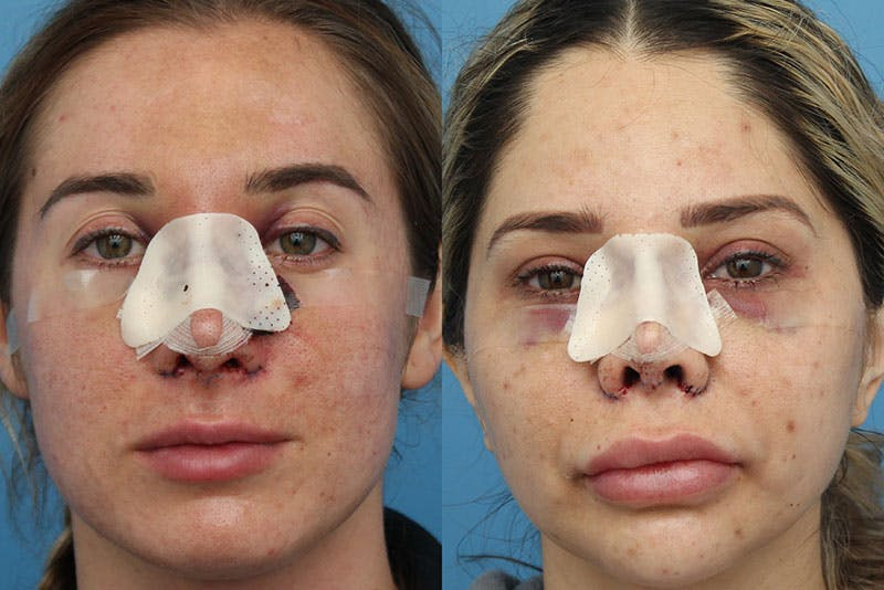 No bruise Rhinoplasty – One day Post-operative Gallery - Patient 6276417 - Image 1