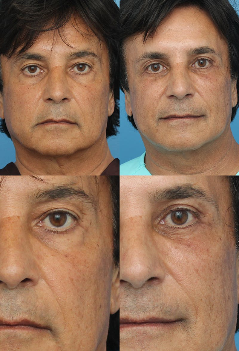 Upper Blepharoplasty Photo Gallery Gallery - Patient 8821208 - Image 1