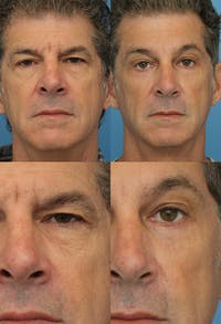 Brow Lift Gallery - Patient 8821227 - Image 1