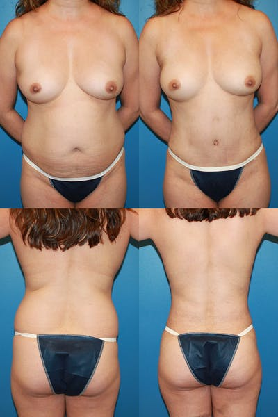 Tummy Tuck Gallery - Patient 2161704 - Image 1