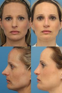 Revision Rhinoplasty Gallery - Patient 10840167 - Image 1
