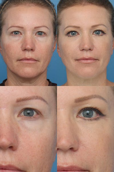 Lower Blepharoplasty Photo Gallery Gallery - Patient 13899463 - Image 1