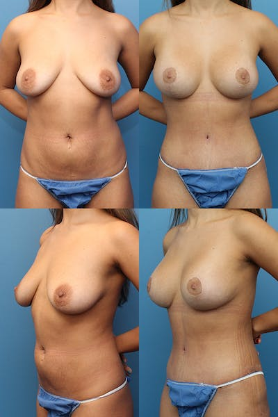 Mommy Makeover Gallery - Patient 13900111 - Image 1