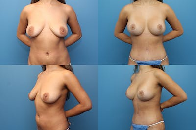 Lollipop Breast Lift with Implants Gallery - Patient 13900292 - Image 1