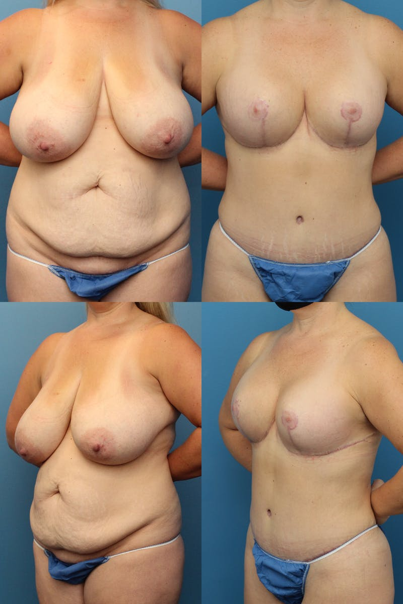 Mommy Makeover Gallery - Patient 8375883 - Image 1