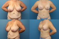 Reductive Augmentation of the Breast Gallery - Patient 15176063 - Image 1