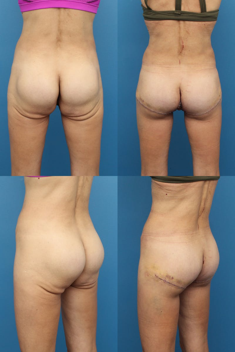 Thong Lift Gallery - Patient 21682010 - Image 1