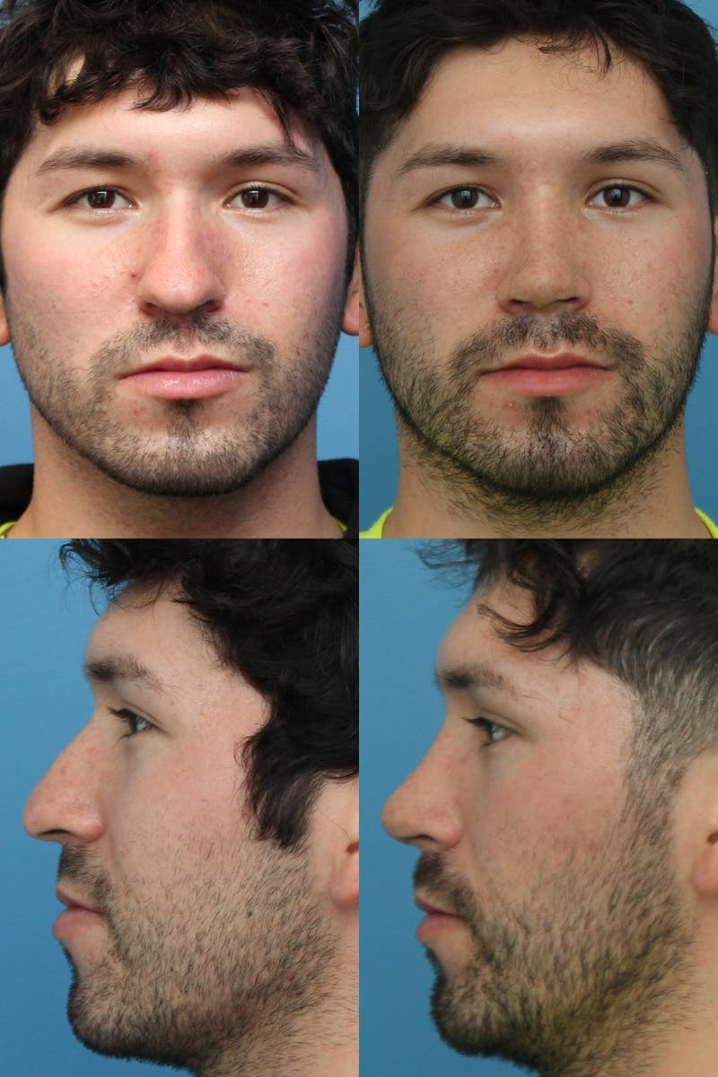 Male Rhinoplasty Gallery - Patient 24222776 - Image 1