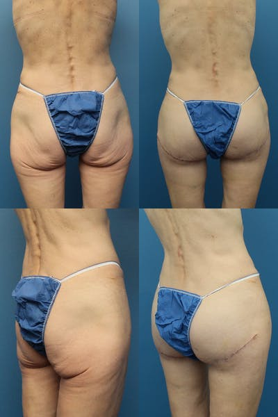 Butt Tuck (Infragluteal Thighlift) Gallery - Patient 25136072 - Image 1