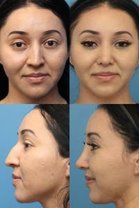 Crooked Nose Gallery - Patient 25734140 - Image 1