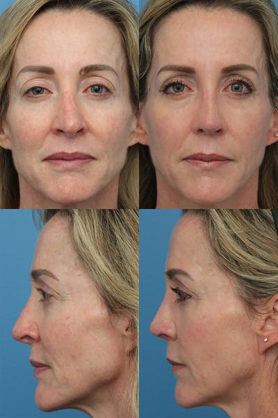Revision Rhinoplasty Gallery - Patient 31357207 - Image 1